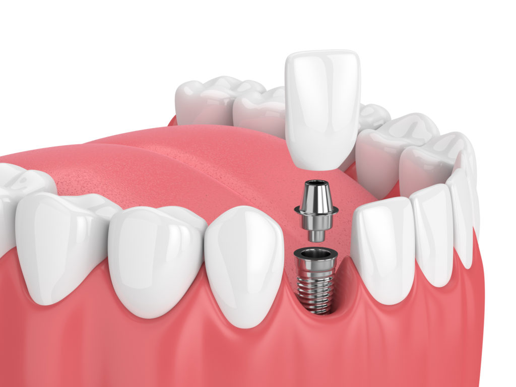 Dental Implants, drum hill dental, dental services