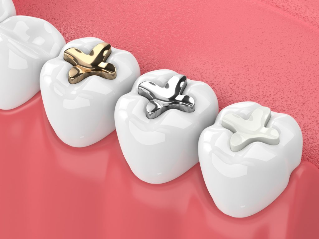 Illustration of a row of teeth with different fillings applied