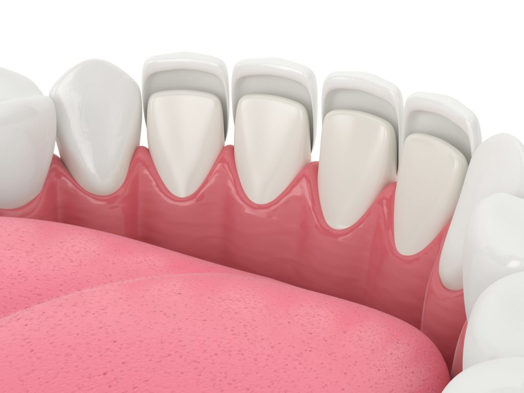 Illustration of a bottom row of teeth with a set of veneers being applied