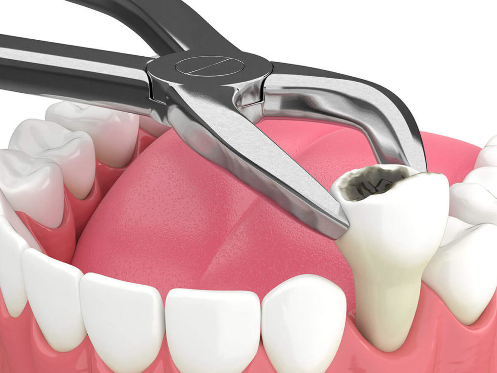 illustration of a tooth extraction
