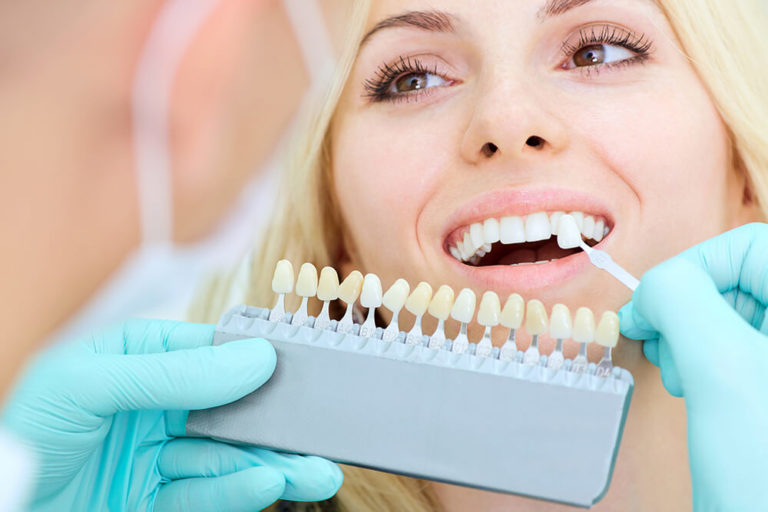 A dentist holds a whitening scale next to a female dental patient's teeth to compare degrees of whiteness