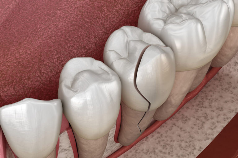 Illustration of a row of teeth with a middle tooth showing enamel damage and cracking